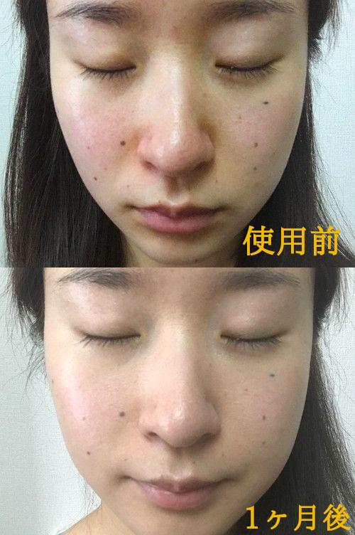 「然プラス 生ビタミンシリカ導入シャワー」を、敏感肌で毛穴の悩みがある女性が使用する前と1ヶ月使用した後の、比較写真。