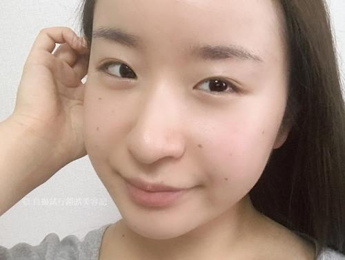 然+ 生ビタミンシリカ導入シャワーを、一ヶ月間使用し続けた女性の顔。