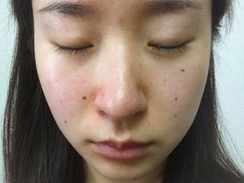 毛穴の開き、ニキビ、赤み、くすみ、などのある、敏感肌の女性の素顔の写真。