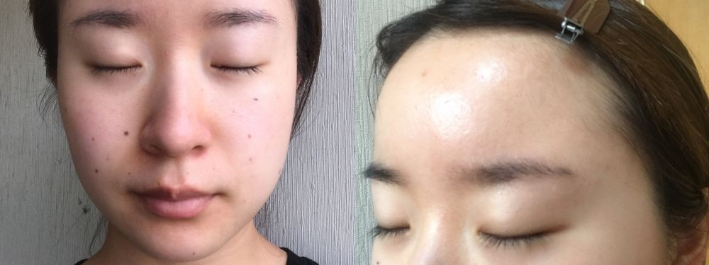 セシュレルのトライアルセットを使用して1週間後の女性の顔。