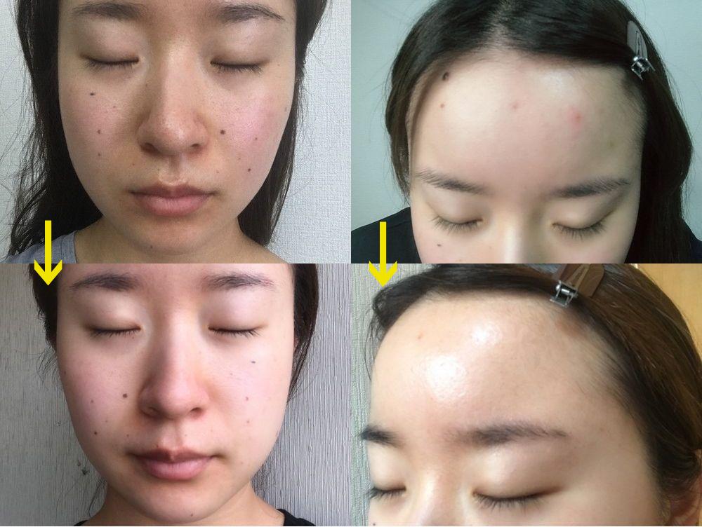 CESHRELL(セシュレル)使用前と1週間使用後の女性の肌状態の比較。