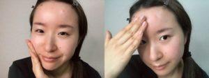 CESHRELL(セシュレル)オールインワン美白クリームを、敏感肌の顔に塗っている女性。