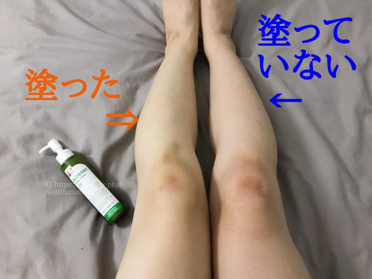アロベビーミルクローションを塗った左脚と、塗っていない右脚を比較。